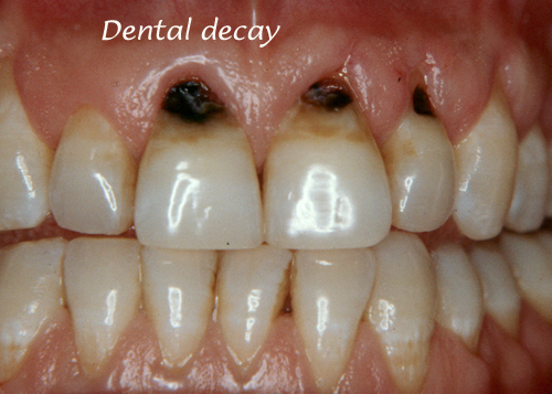 Dental Decay in front teeth